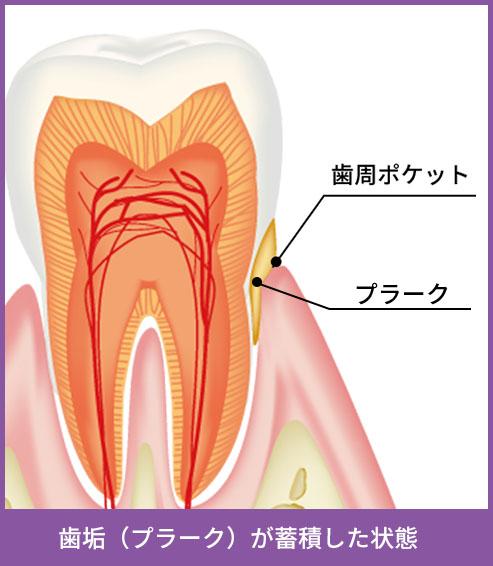 歯垢(プラーク)が蓄積した状態