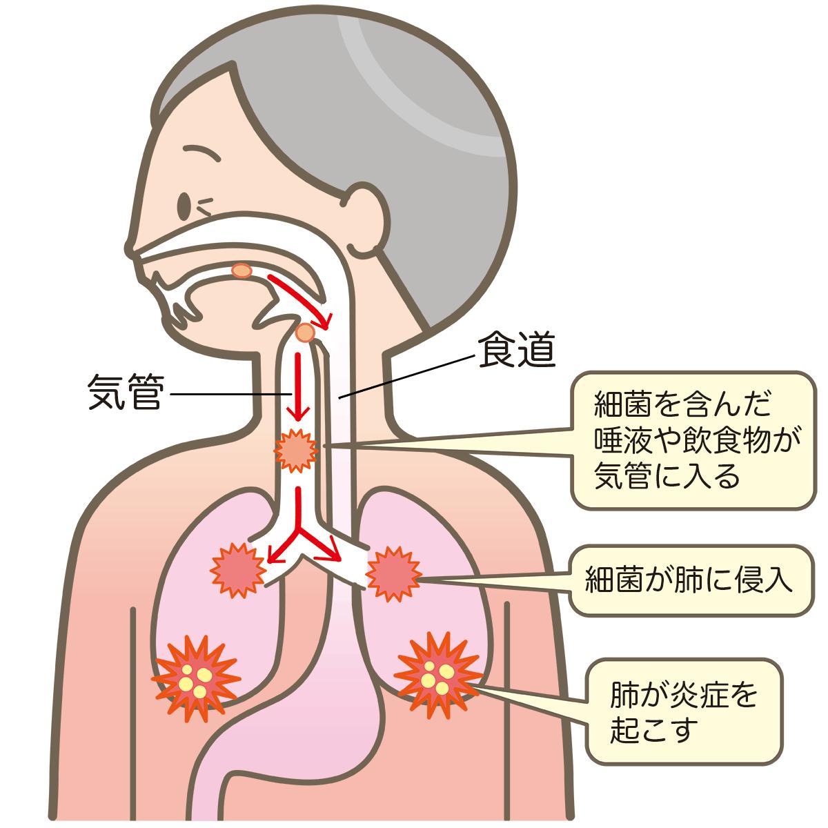 誤嚥性肺炎のメカニズム