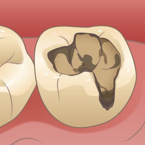 詰め物の虫歯