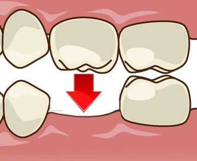 対合歯の挺出