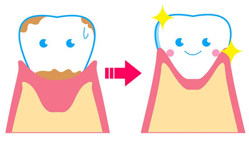 歯茎が引き締まった健康な歯