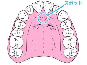 舌の正しい位置-スポット